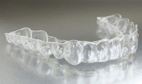 Chi phí niềng răng invisalign bao nhiêu tiền? 1