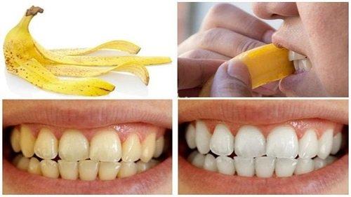 Mang thai có tẩy trắng răng được không? 3