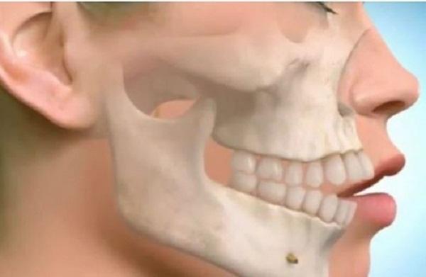 phẫu thuật hàm hô có đau không