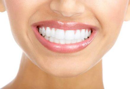 Quy trình tẩy trắng răng bằng laser như thế nào?