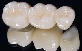 Răng sứ cercon và răng sứ titan có bền không ?