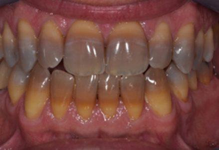tác hại do thuốc lá gây ra với răng miệng