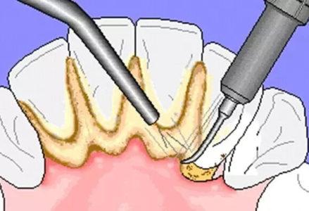viên loét chân răng