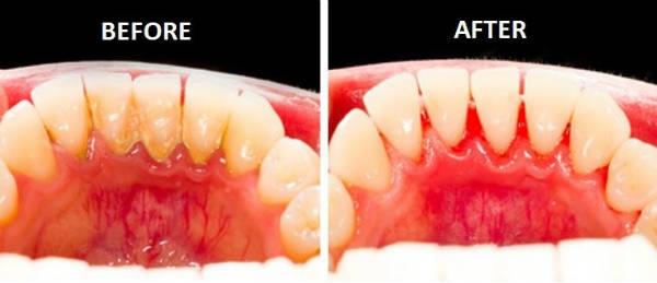 viêm loét chân răng