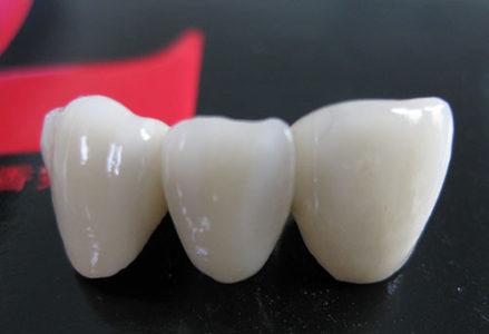 Cầu răng sứ là gì ?