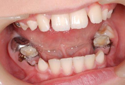 Trám răng cửa thưa, sâu, vỡ... 1