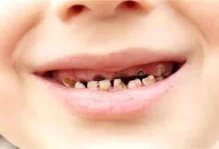 Răng sữa bị sâu nên làm gì?