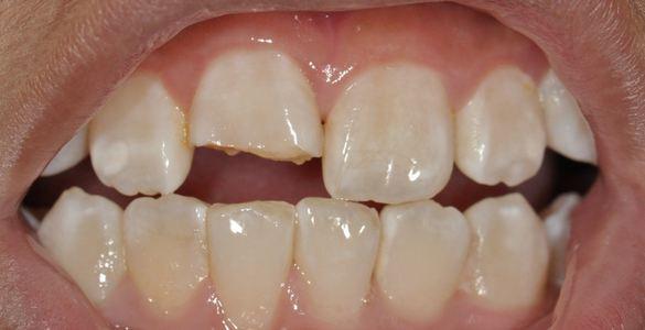 Trám răng cửa thưa, sâu, vỡ... 2