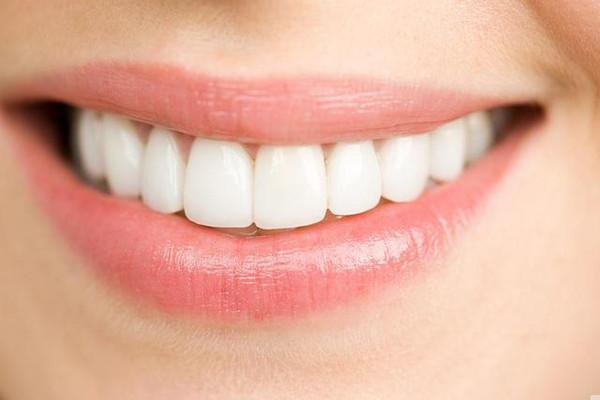 Trám răng cửa thưa, sâu, vỡ... 3