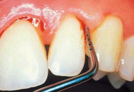Viêm chân răng và cách điều trị