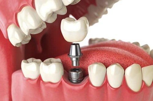 Bác sỹ tư vấn: Trồng răng hàm có đau không? 3