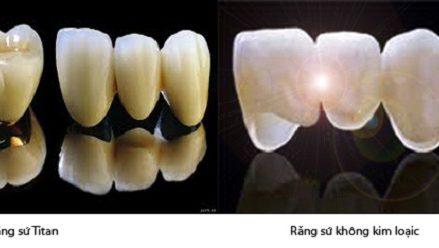 Bọc răng sứ giá bao nhiêu tiền ?