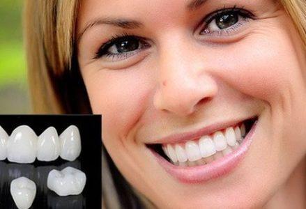 Bọc răng sứ ở đâu tốt nhất tại tphcm?