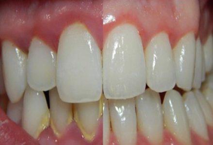 Cạo vôi răng có an toàn không? 1