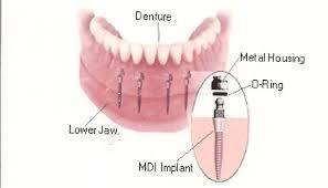 Địa chỉ trồng răng implant tốt nhất ở đâu?