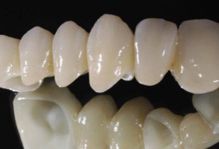 dịch vụ làm răng sứ tốt nhất