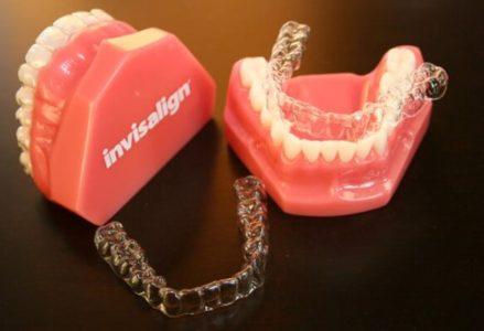 Công nghệ niềng răng invisalign Việt Nam