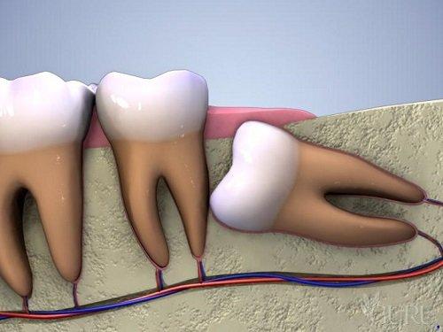 Khi mọc răng khôn hàm trên nên làm gì? 1