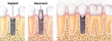 nha-khoa-cay-ghep-implant-1