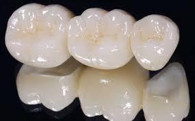Bọc răng sứ giá bao nhiêu tiền ? 1