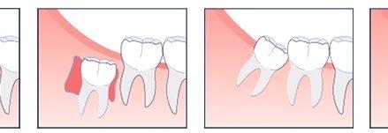 Nhổ răng khôn mọc lệch như thế nào?