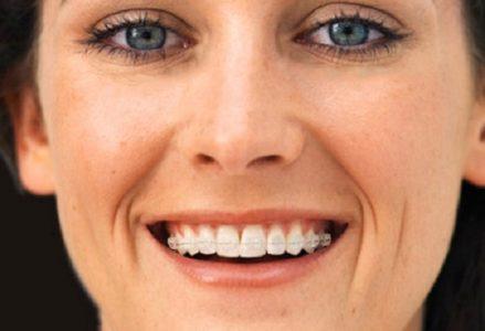 Niềng răng hô như thế nào ?