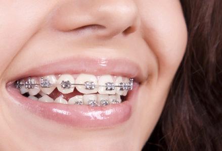 Mức chi phí niềng răng