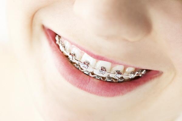 Niềng răng không nhổ răng áp dụng khi nào? 1
