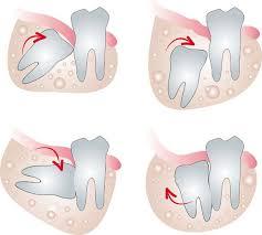 Răng khôn không mọc có làm sao không?
