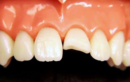Răng sứ bị mẻ vỡ phải làm sao khắc phục? 1