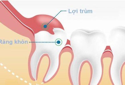 Sưng nướu răng trong cùng là tình trạng răng miệng gì?