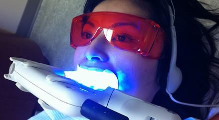 tẩy trắng răng bằng laser giá bao nhiêu