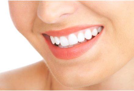 Tẩy trắng răng duy trì được trong bao lâu phải làm lại?