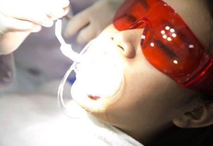 tẩy trắng răng duy trì được trong bao lâu