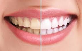 Tẩy trắng răng thẩm mỹ giúp răng đẹp tự nhiên