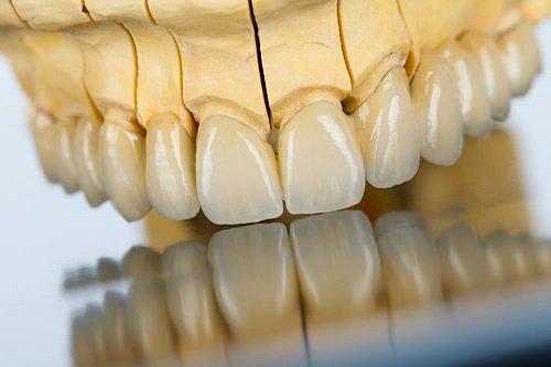 Làm răng giả bao nhiêu tiền? 1