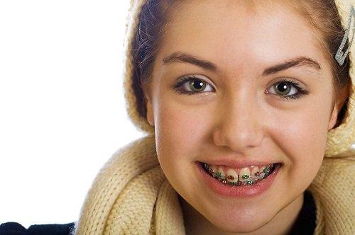Lứa tuổi nào nên niềng răng? 1
