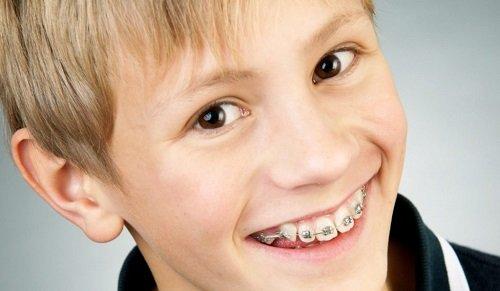 Tác dụng của chỉnh răng 1