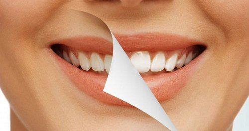 Tẩy trắng răng tại nhà an toàn an toàn không 3