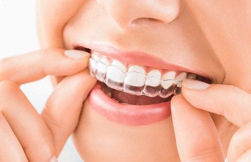 Có nên đi niềng răng không? Những điều nên và không nên thực hiện 2