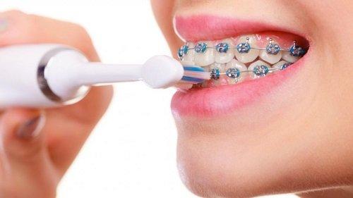 Có nên đi niềng răng không? Những điều nên và không nên thực hiện 3