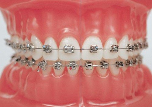 Niềng răng mắc cài 3m ugsl công nghệ mới hiệu quả cao 1