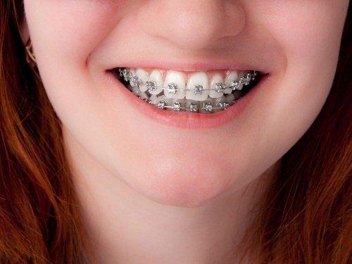 Niềng răng mắc cài 3m ugsl công nghệ mới hiệu quả cao 3