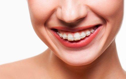Niềng răng mắc cài pha lê thẩm mỹ với ưu điểm vượt trội 3