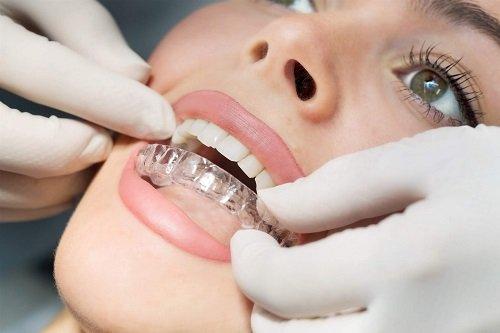 Niềng răng người lớn giá bao nhiêu vậy? Tìm hiểu 2
