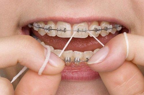 Ưu và nhược điểm các loại niềng răng sai khớp cắn 1