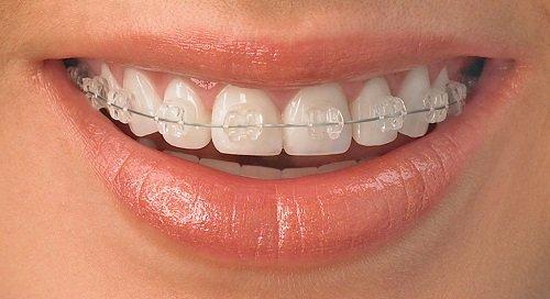 Ưu và nhược điểm các loại niềng răng sai khớp cắn 2