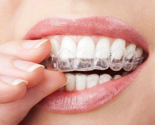 Ưu và nhược điểm các loại niềng răng sai khớp cắn 4