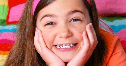 Niềng răng trẻ em bao nhiêu tiền? Cần tìm hiểu thêm thông tin 3