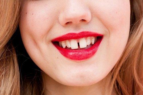 Niềng răng thưa có đau không? Chia sẻ thực tế 1